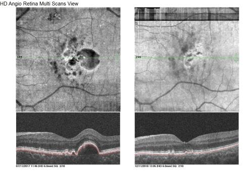 Imagen derecha: Se observa clara involución de las drusas subretinianas post Fotomodulación Láser 577nm